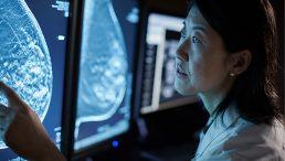 SecurView® Arbeitsstation für die Brustbildgebung